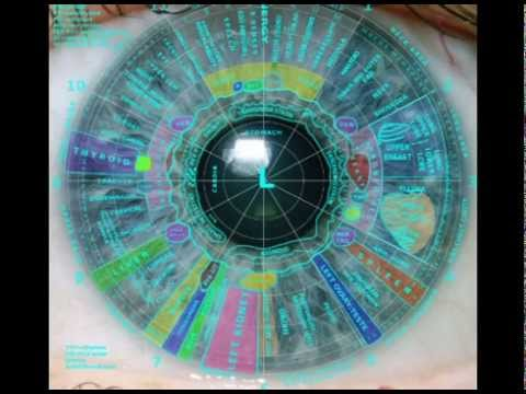 Iridology introduction video by Dr Morse
